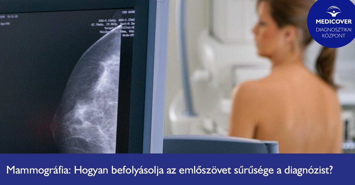 hogyan-befolyasolja-az-emloszovet-suruseg-a-mammografias-vizsgalatot