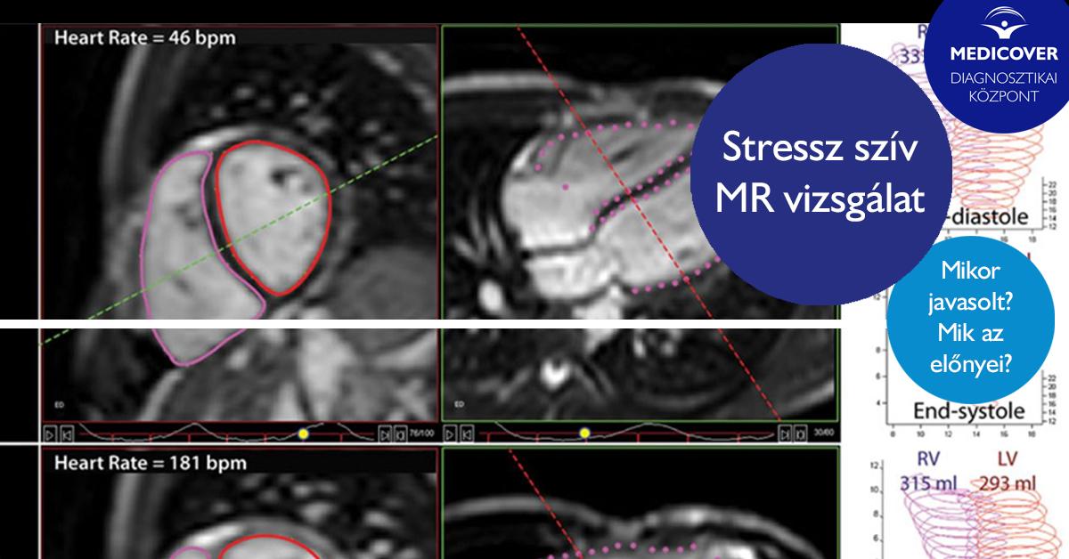 mikor-javasolt-stressz-sziv-mr-vizsgalat-elvegzese