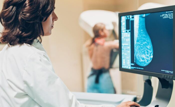 mammografia-mammografia-szures